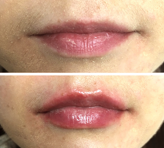 Lip fillers treatment at Marchmont Dental in Edinburgh